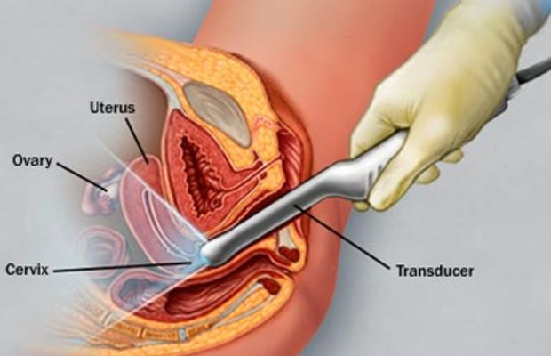 abortion_wisconsin_transvaginal