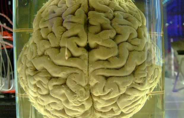 Human brain - please add comment and fav this if you blog with it. by Gaetan Lee.