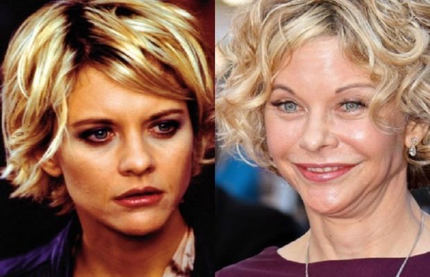 Meg-Ryan-Plastic-Surgery-Before-and-After.jpg