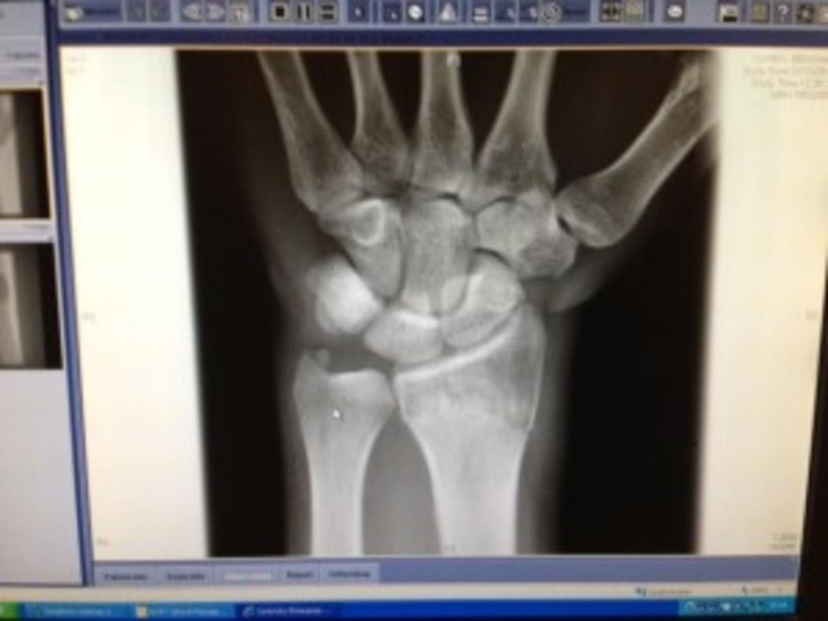 broken wrist 1